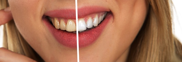 4 דרכים מומלצות לשמירה על שיניים לבנות